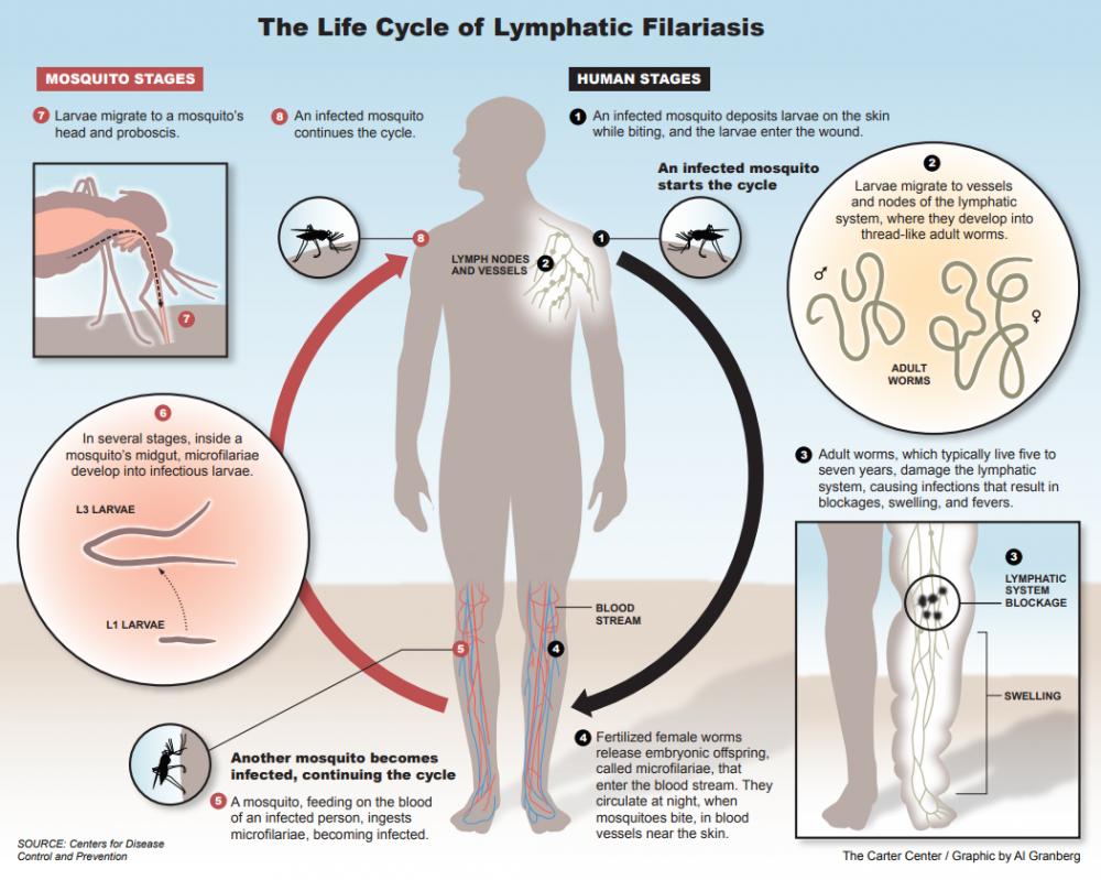 Risultati immagini per lymphatic filariasis